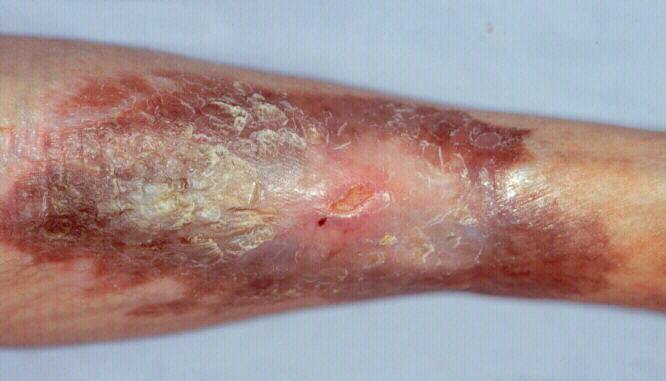 # Diabetic Ulcers On Legs - Pre Diabetes Blood Sugar Level