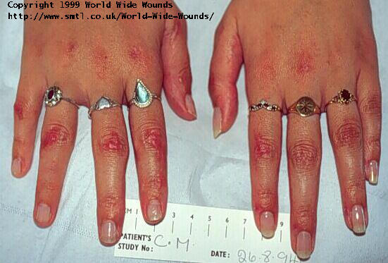 The role of moist wound healing in the management of meningococcal