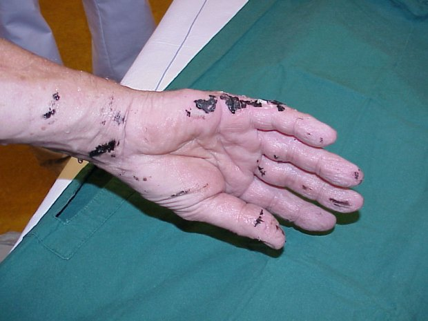 Case report: The use of butter to treat a hot tar burn injury