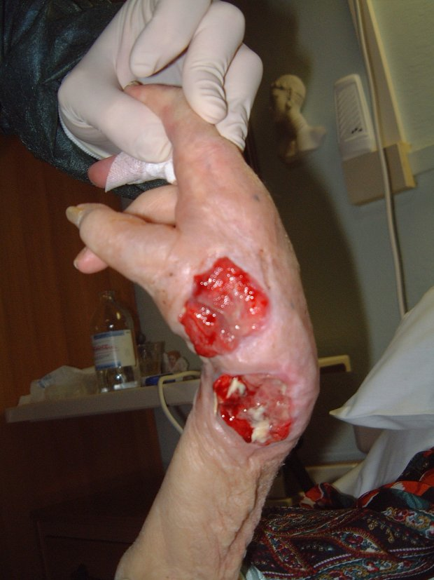 Figure 3 - Grade 3 pressure ulcer on the hand.