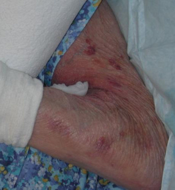 steroid induced osteoporosis symptoms